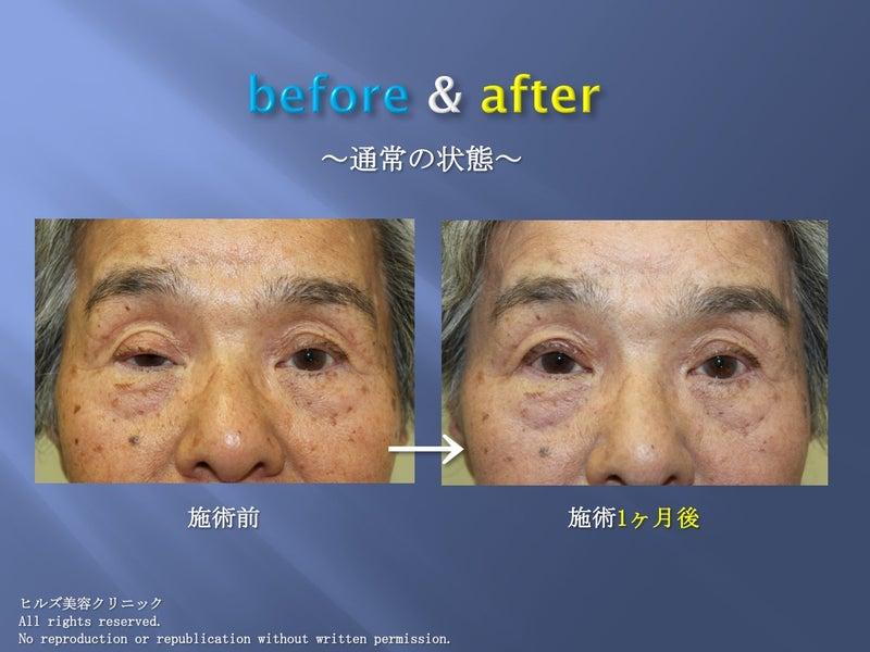 眼瞼下垂before & after 開眼