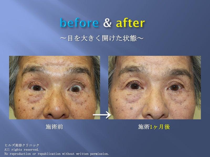 眼瞼下垂before & after 大きく目をあけた状態