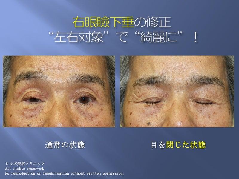 眼瞼下垂 症例