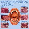 口の中の癌
