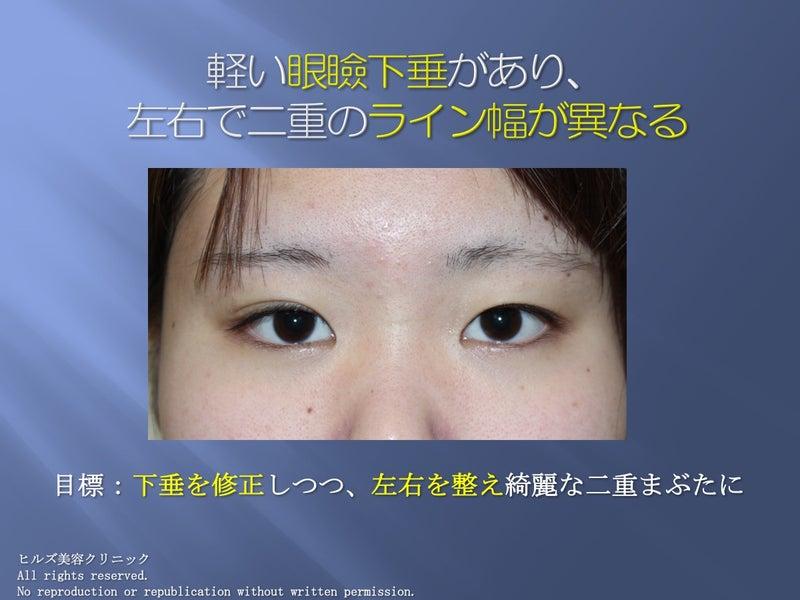 左右で二重のラインが違う 眼瞼下垂