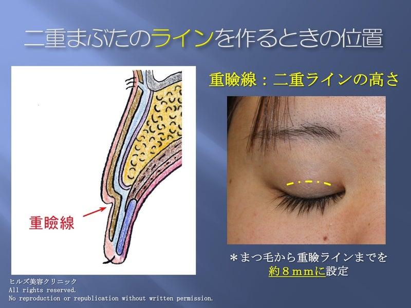 目のプチ整形 デザイン