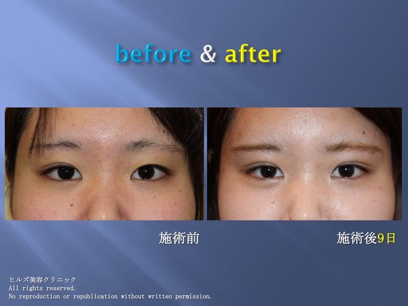 二重まぶた(埋没法)before & after