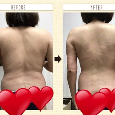 1ヶ月で6キロ痩せたキャビテーションモニターさん!頑張られました!の記事に添付されている画像