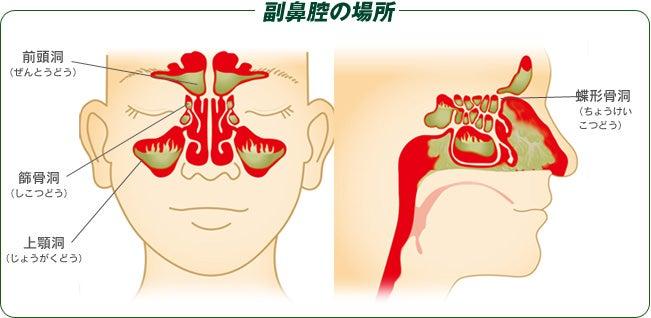 副 炎 急性 鼻腔