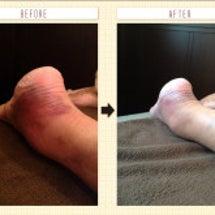 足首のねんざの症例報…