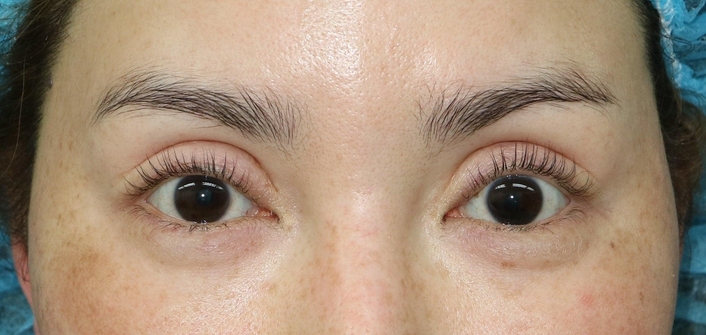 グラマラスライン手術と目尻切開で雰囲気を変える!