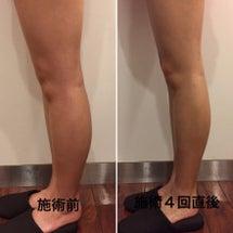 脚やせの症例