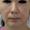 目の下のたるみをヒアルロン酸で治す方法の画像