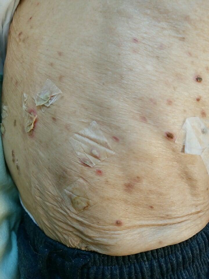 結節 性 痒疹