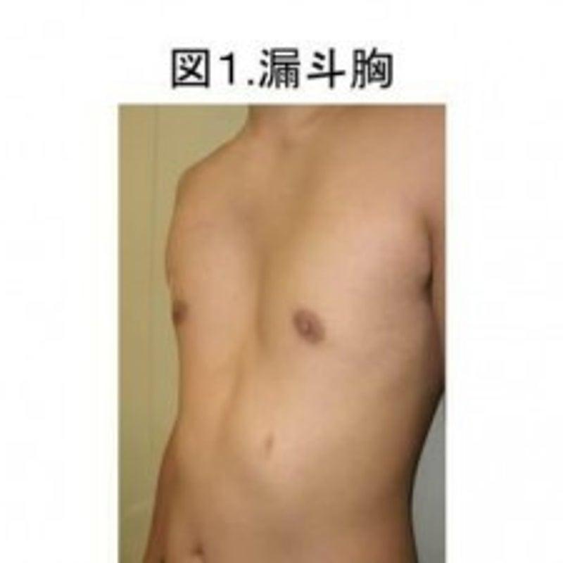 芸能人 漏斗 胸 漏斗胸治療 ~正面から~|豊胸・バストのお悩みブログ
