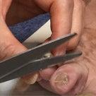 教訓!爪切りは持ち歩くべきねの記事より