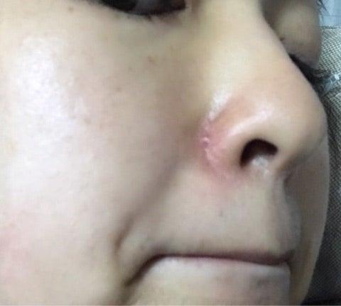 小鼻 ニキビ