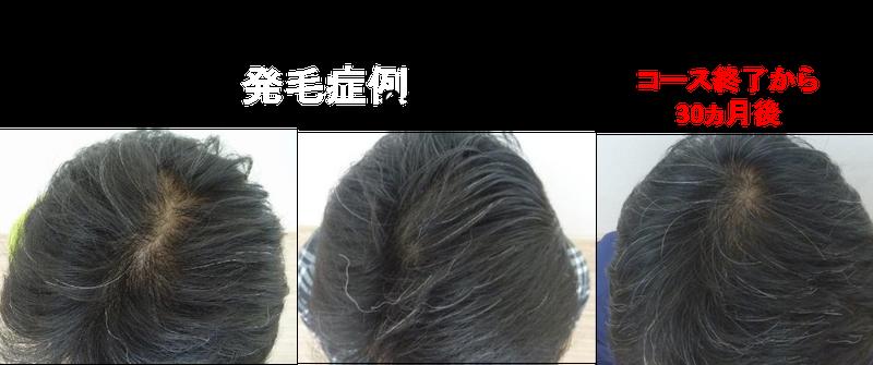維持 発毛