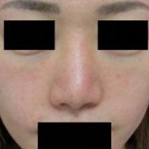 【症例写真】小鼻の内…