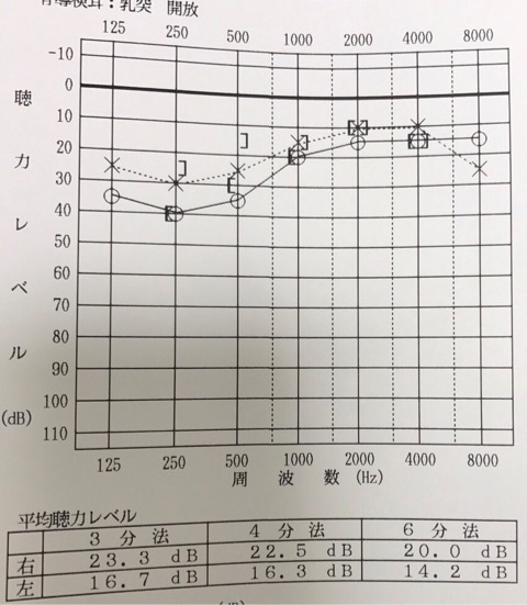 音 低音 感 性 難聴 障害 型