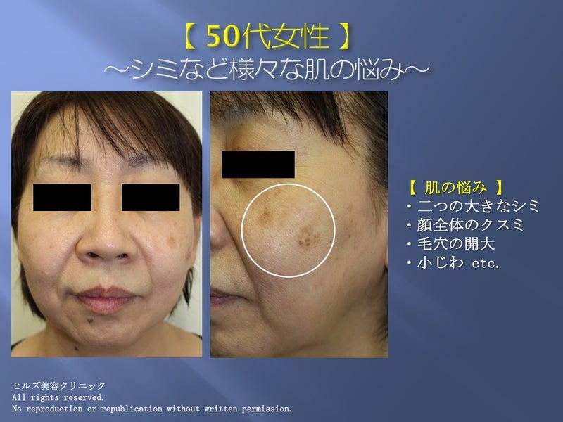 50代 肌の悩み