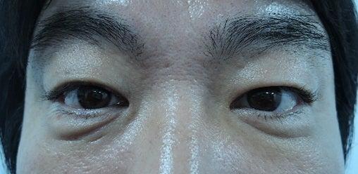 男性の目の下の治療画像。若返り治療。皮膚再生治療。