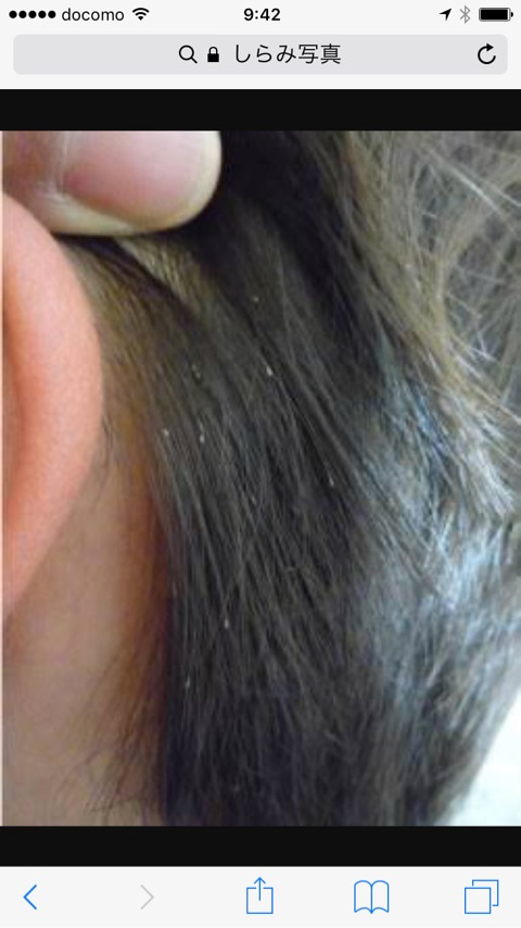 症状 アタマジラミ シラミ(頭ジラミ・毛じらみ・床ジラミ)