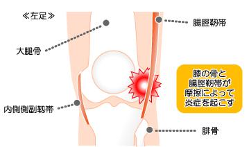 23cfe92e96 ... いって膝の屈伸(歩行・走行)を繰り返すことにより、腸脛靭帯というももの外側を走っている靭帯が膝の外側で摩擦をくり返すことにより、炎症を起こして痛みが発生  ...