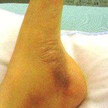 手術前後の様子
