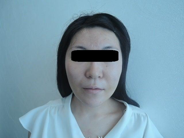 メーラーファットの減量手術ですが、お顔の輪郭を整えるに加えて、ほうれい線を浅くすることが出来ます。