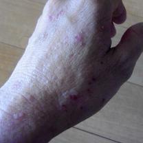 【NOVベビーソープ】1回分のサンプルを使った感想(アトピー体質&敏感肌)の記事に添付されている画像