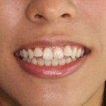 SBCスタッフの前歯…