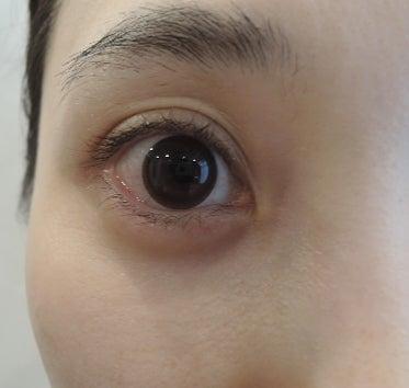 デカ目治療。ミューラー筋タッキングとグラマラスライン形成、内側アプローチ、右目経過画像