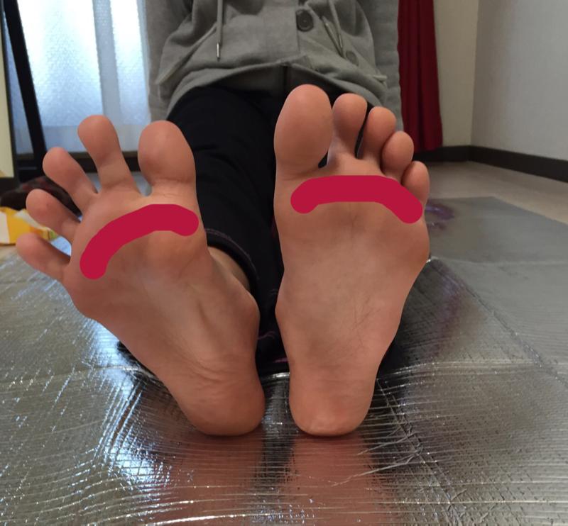 付け根 痛い の 指 足