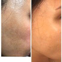 シミが消えてく凄い化粧品エンビロン➕#SAYURIの記事に添付されている画像