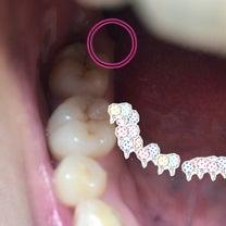 ☆抜歯後、歯茎から骨が飛び出て来ました☆の記事に添付されている画像