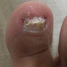 極限まで患部の爪を切…