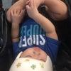 ヘルメット治療開始後、4回目の診察の画像