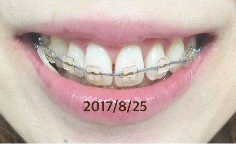 矯正 まあ た そ 第80回日本矯正歯科学会学術大会 &