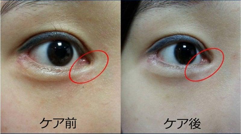 目頭 切開 傷跡 【写真あり】目頭切開当日~抜糸後の傷跡!腫れや痛みについて