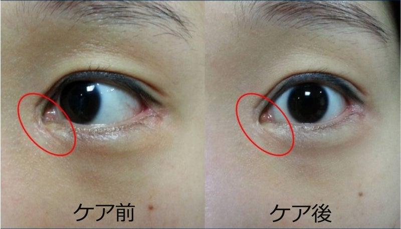 目頭 切開 傷跡 目頭切開の傷跡が消えるまでの期間と目立たなくする方法|二重・目元...