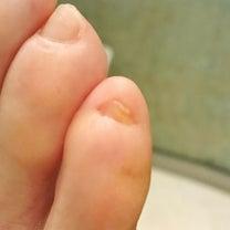 足の小指の爪が無いと言う方の為のフットケア☆小金井市ネイルサロン・モンテヴェルデの記事に添付されている画像