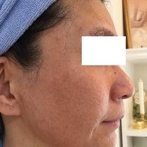 グリーンピール効果・クレーター・赤ら顔の記事に添付されている画像