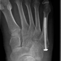 第五中足骨骨折手術後…
