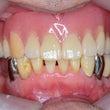 義歯をⅠつⅠつ イン…