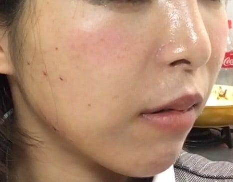 アモーレ 口コミ 美肌