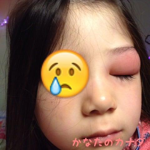 目 の 上 の たんこぶ 目の上の瘤(めのうえのこぶ)の意味 - goo国語辞書