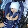 ヘルメット治療の近況の画像