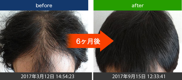 20代男性発毛実績(AGA)改善例