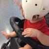 ヘルメット治療開始後、5回目の診察の画像