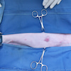 猫の乳腺腫瘍、乳がん、過形成の画像