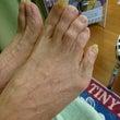 【足の爪切り】介護中…
