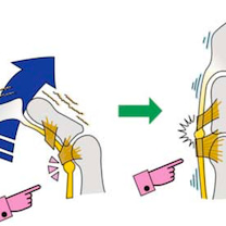 「ばね指って治るんですね!!!」筋膜調整の効果の記事に添付されている画像