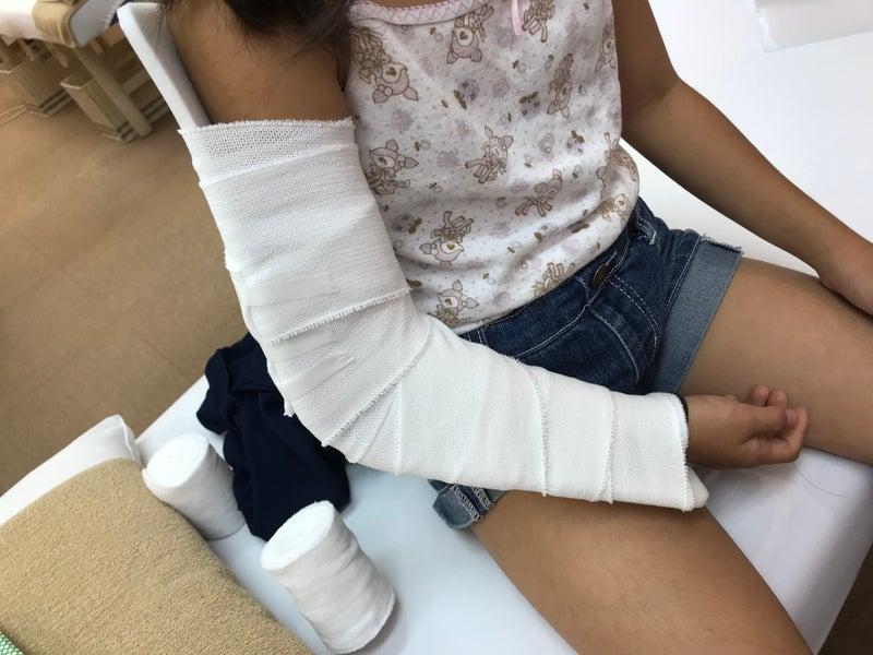 空手大会で骨折の処置をした患者さん